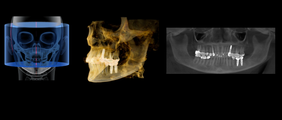 Canadian Digital Imaging: image of a panoramic scan and x-ray